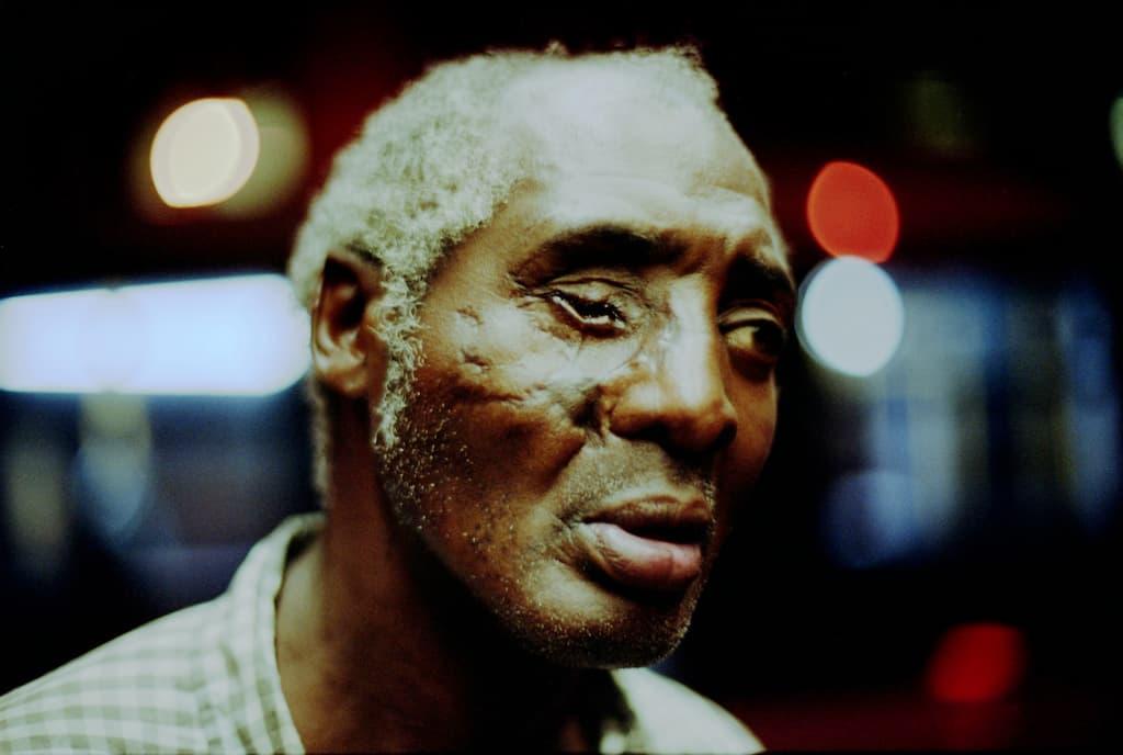 Photo de Khalik Allah : un homme avec un un oeil crevé